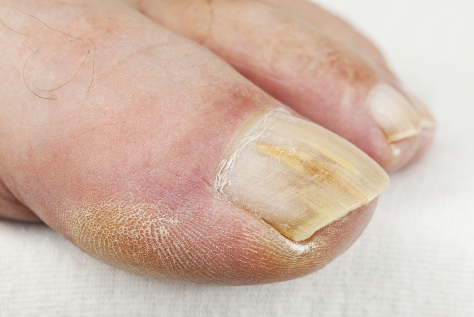 قارچ ناخن چیست؟ | علائم بیماری قارچ ناخن انگشت پا
