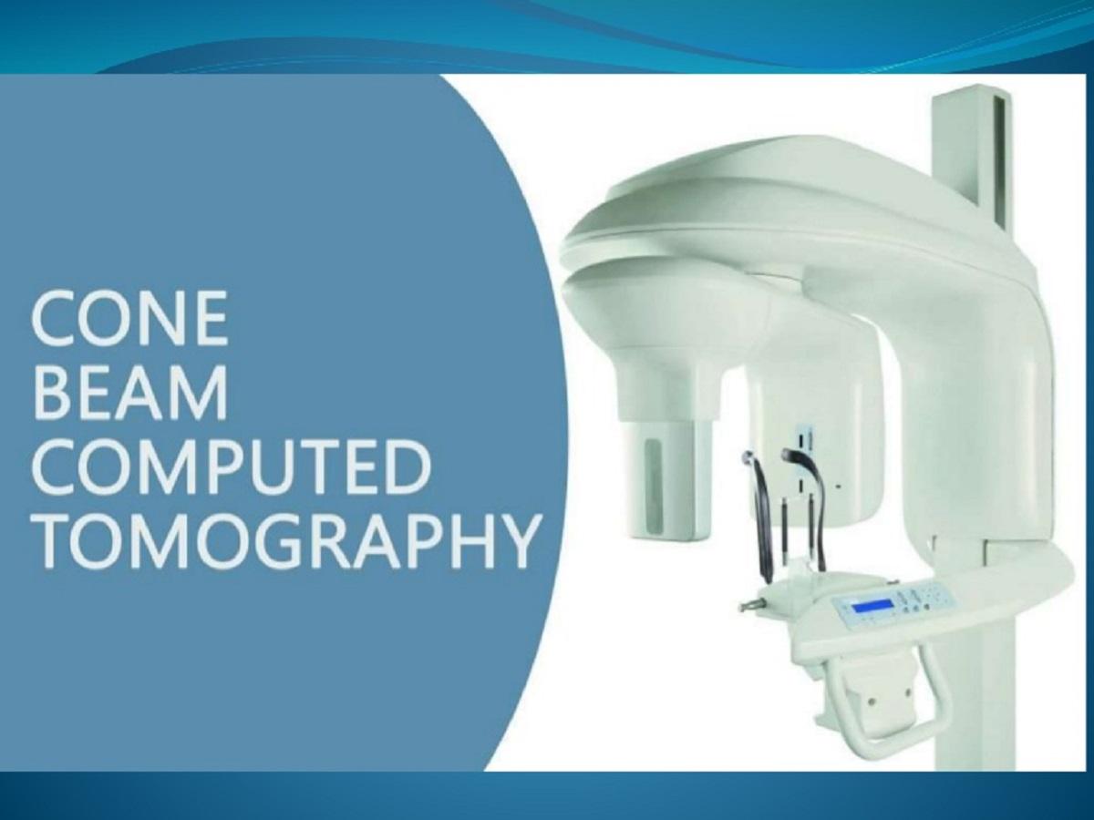 رادیولوژی دندان cbct/ روش تصویربرداری سه بعدی