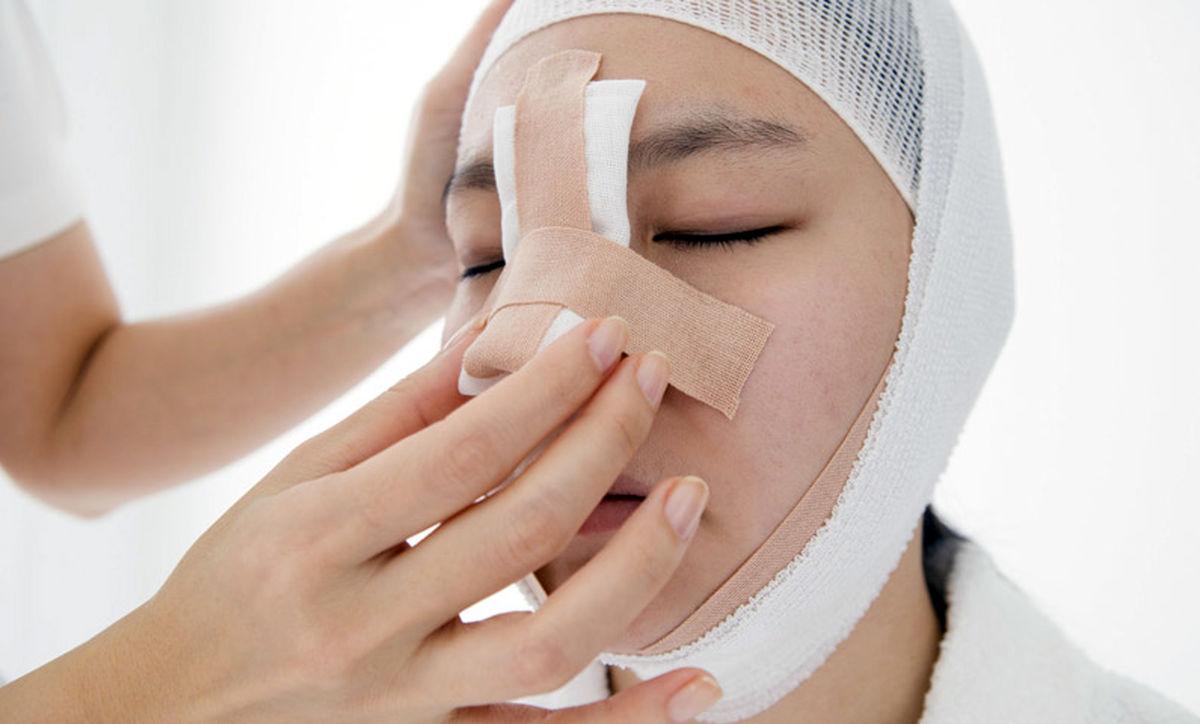 گچ گرفتن بینی (اسپلینت) چیست و چگونه انجام میشود؟