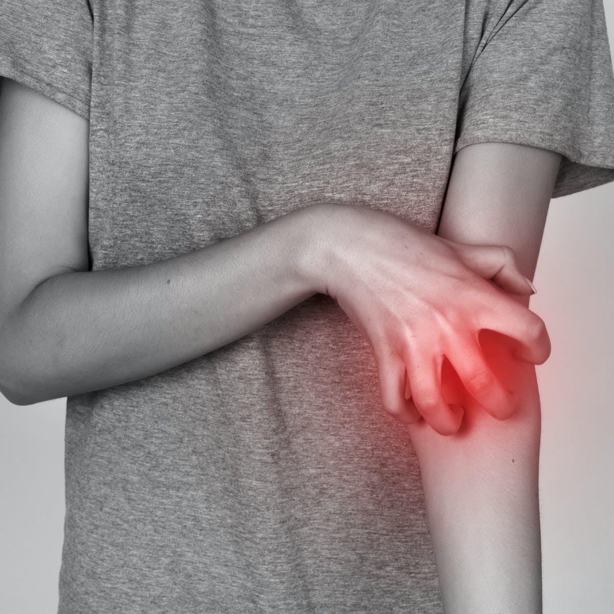 بیماری گال چیست؟ علائم بیماری انگلی گال